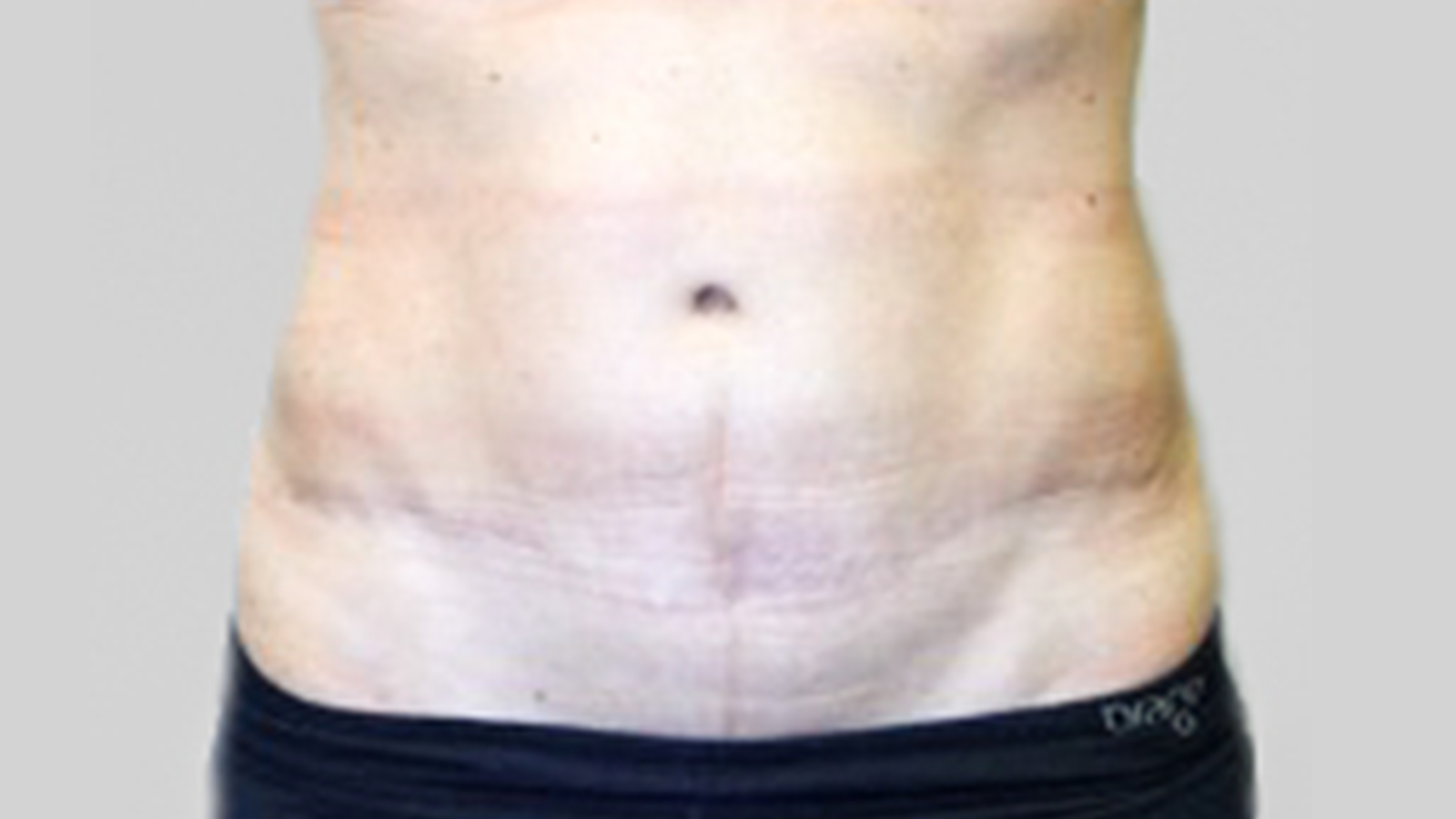 tummytuck-after-1