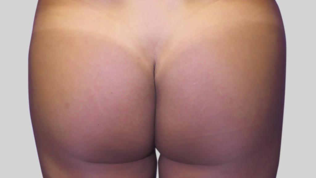 montreal brazilian butt Lift after