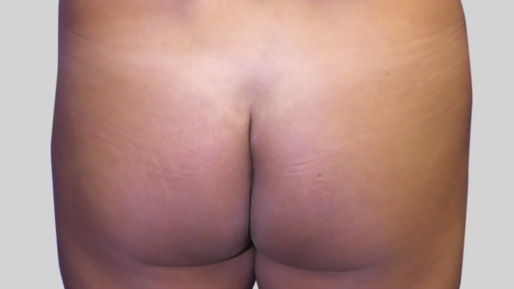 clinique dr karl schwarz montreal brazilian butt