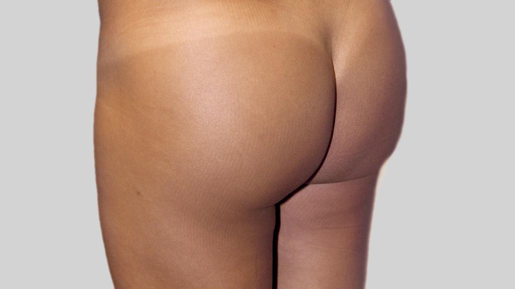 montreal brazilian butt Lift