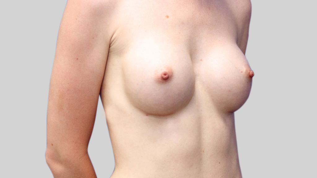 clinique-dr-karl-schwarz-montreal-Breast-Augmentation1-after