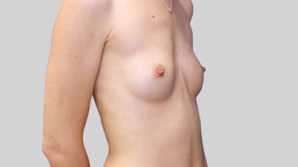 clinique-dr-karl-schwarz-montreal-Breast-Augmentation1-before