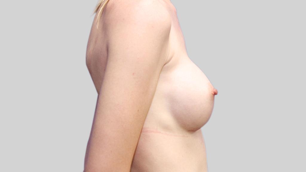 clinique-dr-karl-schwarz-montreal-Breast-Augmentation2-after