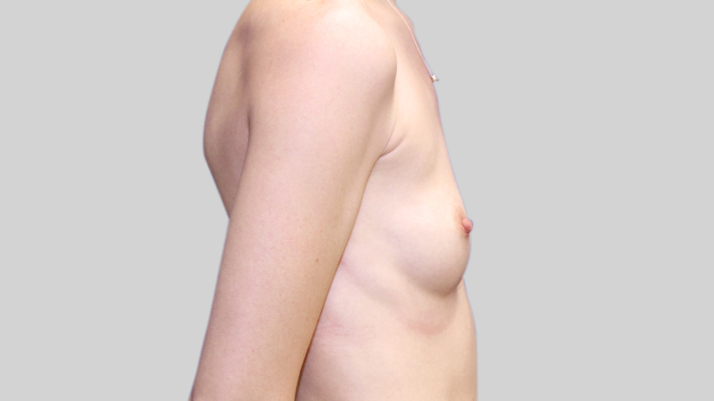 clinique-dr-karl-schwarz-montreal-Breast-Augmentation2-beforer