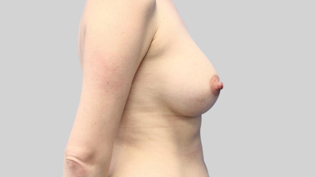 clinique-dr-karl-schwarz-montreal-Breast-Augmentation3-after