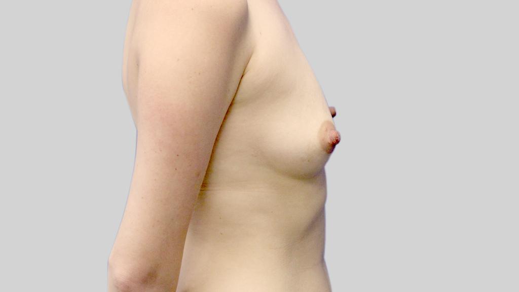 clinique-dr-karl-schwarz-montreal-Breast-Augmentation3-before