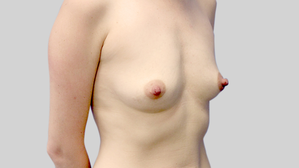 clinique-dr-karl-schwarz-montreal-Breast-Augmentation4-before