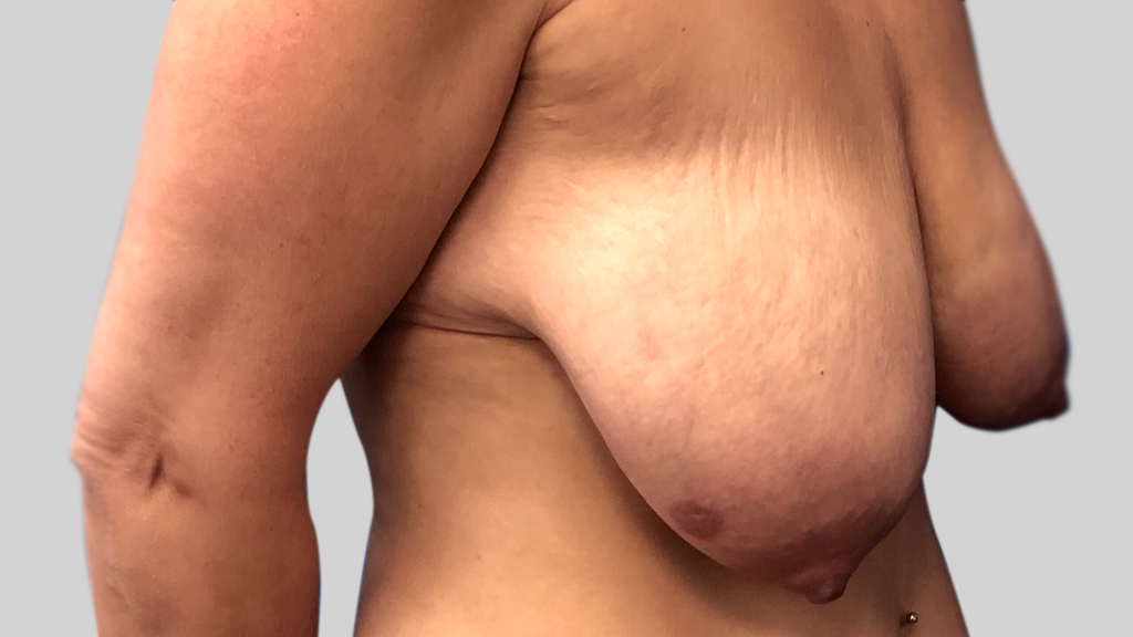 clinique-dr-karl-schwarz-montreal-Breast-Lift1-before