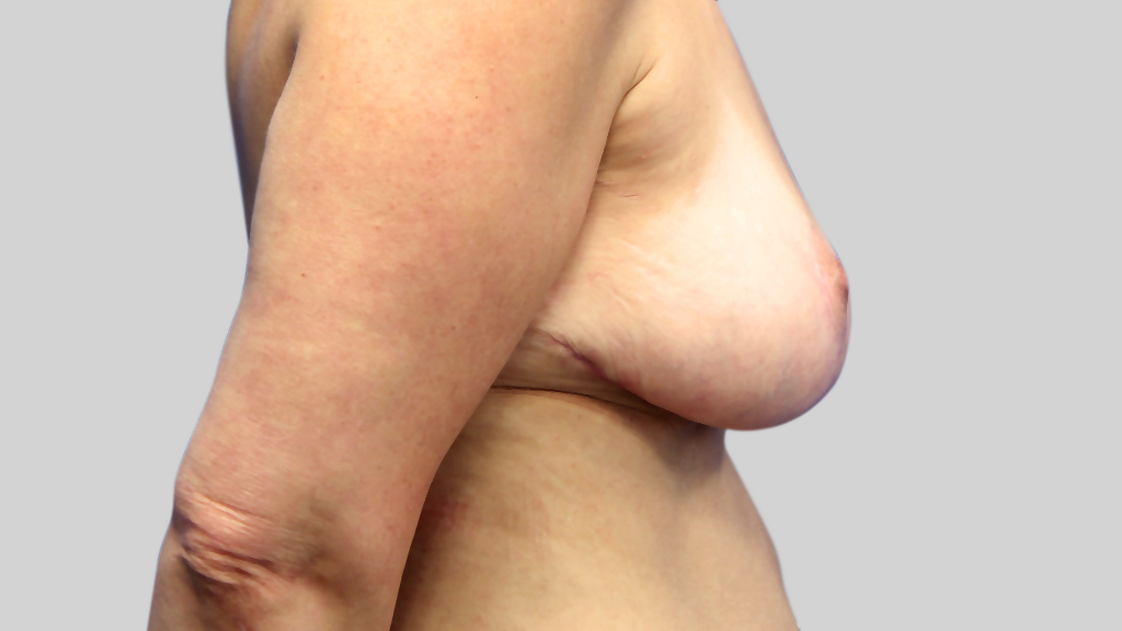 clinique-dr-karl-schwarz-montreal-Breast-Lift2-after
