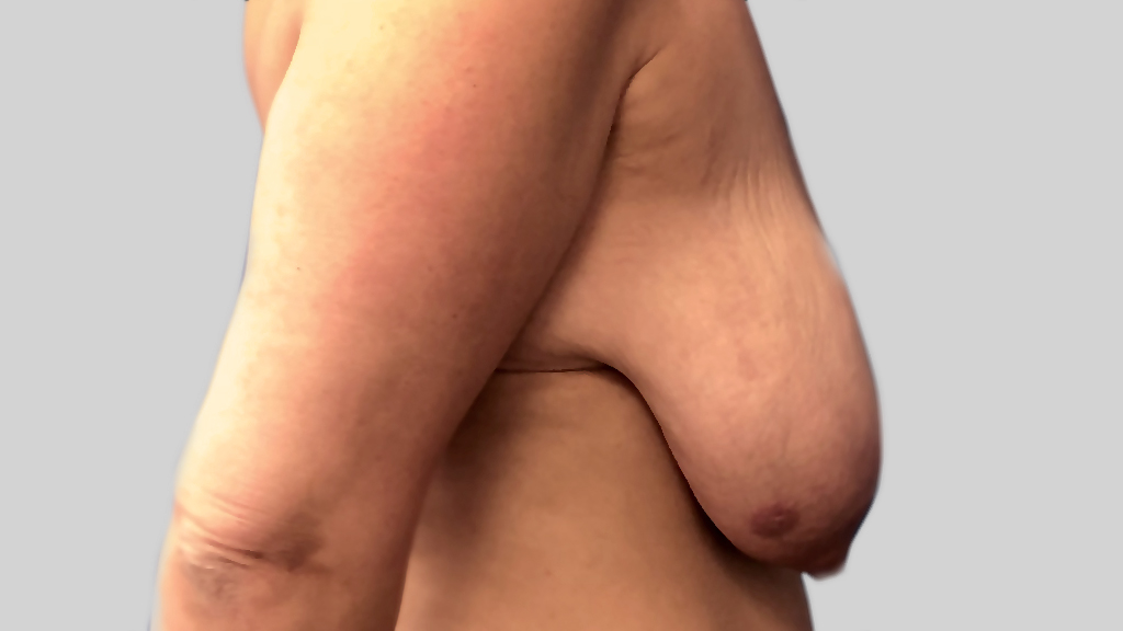 clinique-dr-karl-schwarz-montreal-Breast-Lift2-before