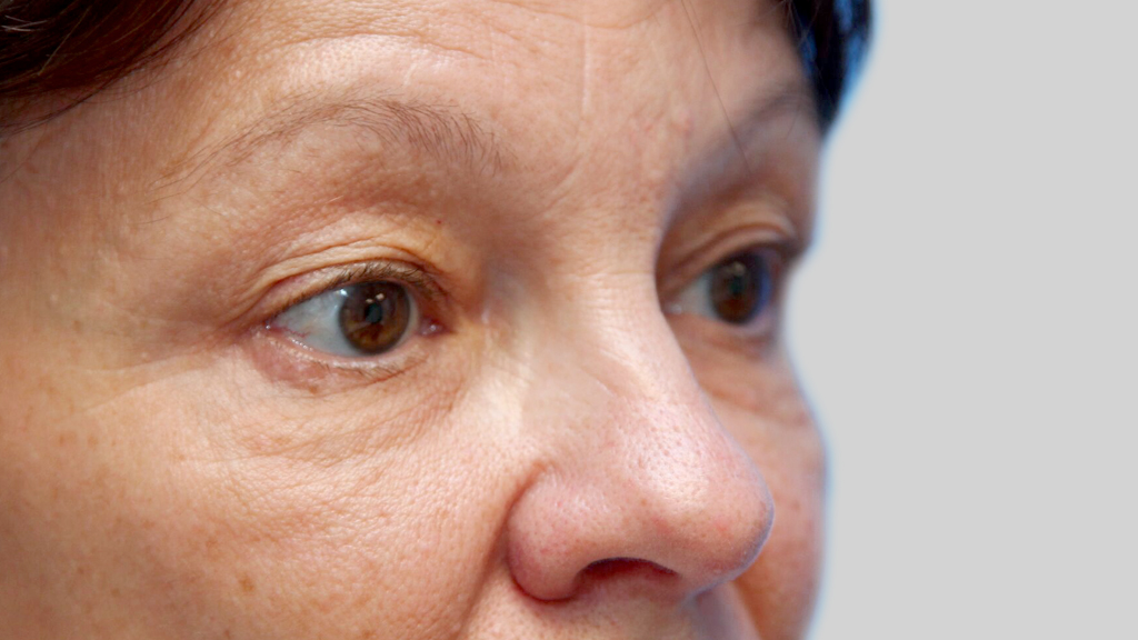 clinique-dr-karl-schwarz-montreal-Eyelid-Surgery-2-after