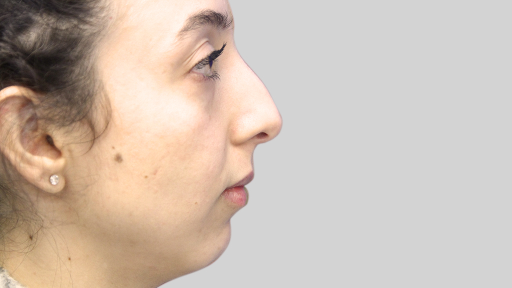 clinique-dr-karl-schwarz-montreal-NON-SURGICAL-NOSE-JOB2-before