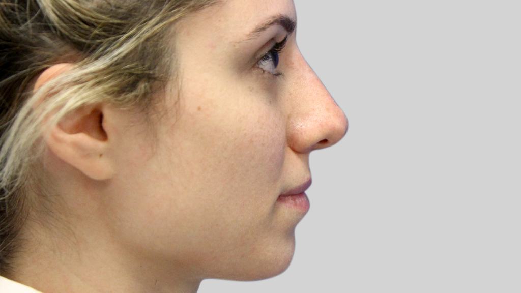 clinique-dr-karl-schwarz-montreal-NON-SURGICAL-NOSE-JOB5-after