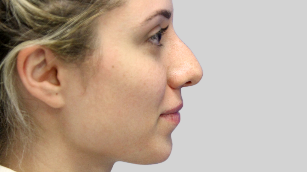 clinique-dr-karl-schwarz-montreal-NON-SURGICAL-NOSE-JOB5-before
