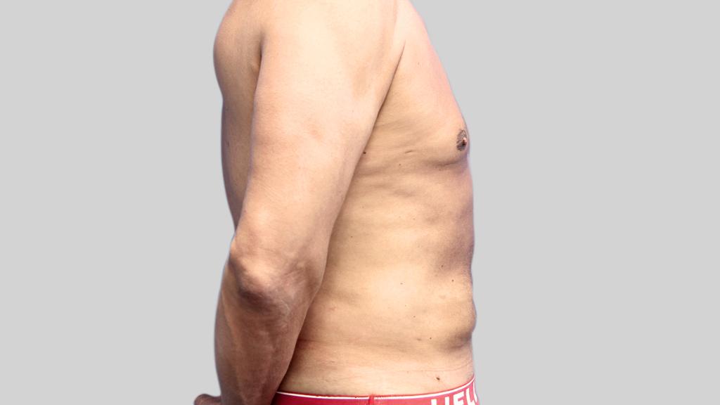 montreal-Tummy-Tuck-men