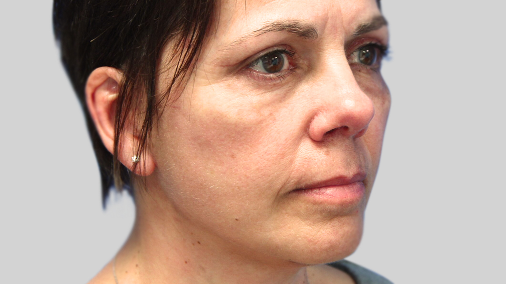 clinique-dr-karl-schwarz-montreal-face-lift-2-after
