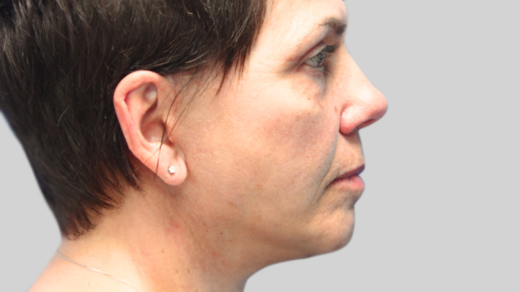 clinique-dr-karl-schwarz-montreal-face-lift-3-after