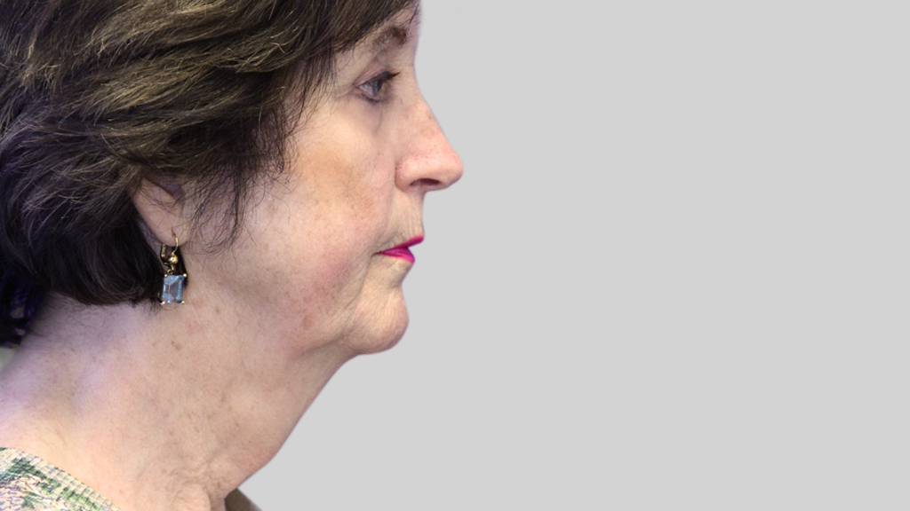 clinique-dr-karl-schwarz-montreal-face-neck-lift-1-before
