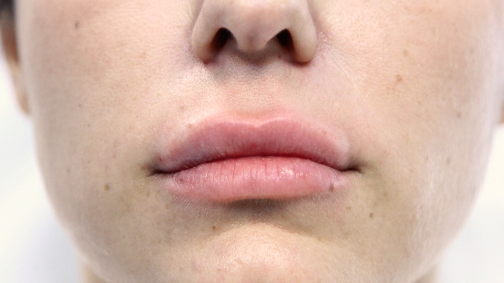 clinique-dr-karl-schwarz-montreal-lip-augmentation-after