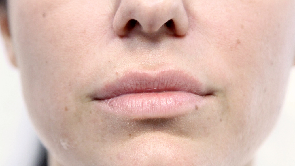 clinique-dr-karl-schwarz-montreal-lip-augmentation-before