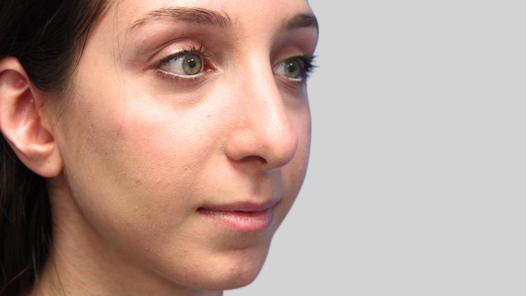 clinique-dr-karl-schwarz-montreal-nose-job2-after