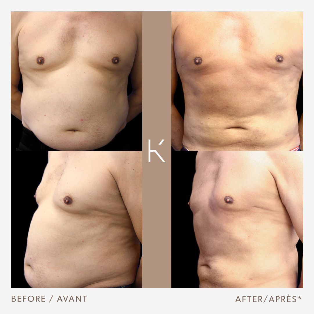 Abdominal Liposuction & Gynecomastia