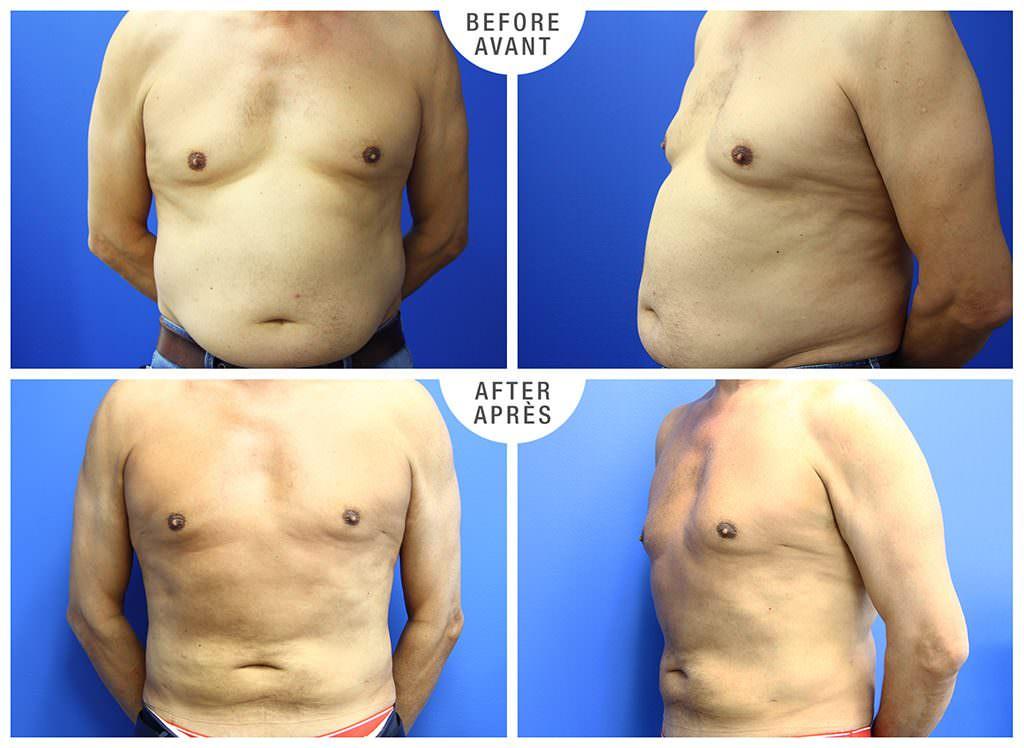 Abdominal Liposuction & Gynecomastia