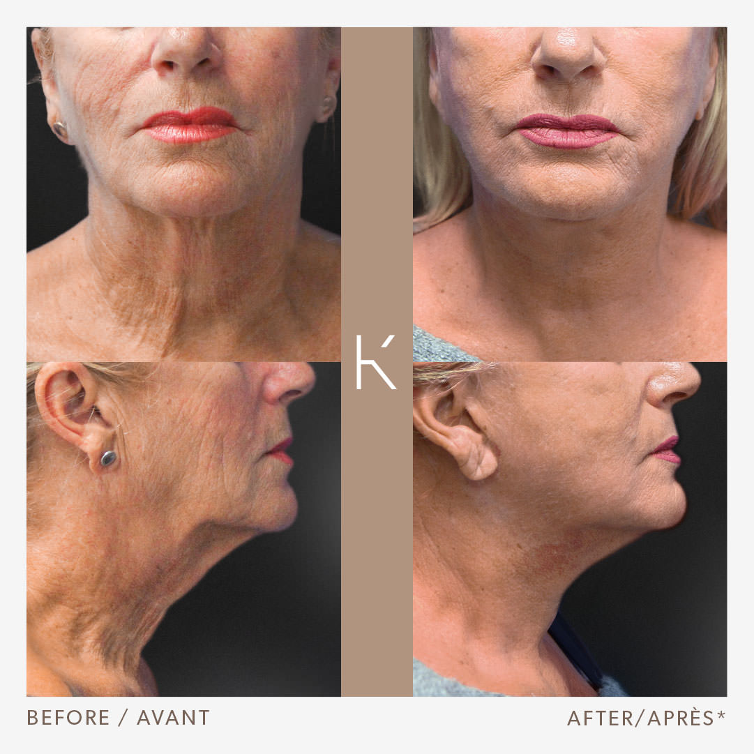 Face Neck Lift