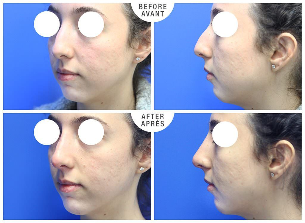 Non-surgical Rhinoplasty and Chin