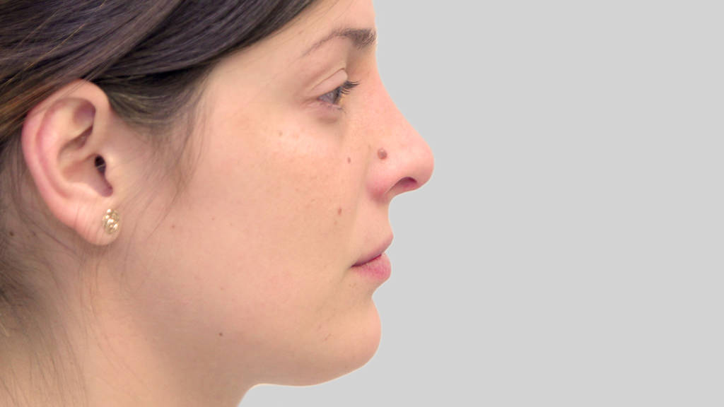 clinique dr karl schwarz montreal nose job